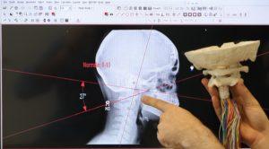radiografia anatomica